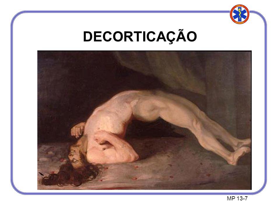 MP 13-7 DECORTICAÇÃO