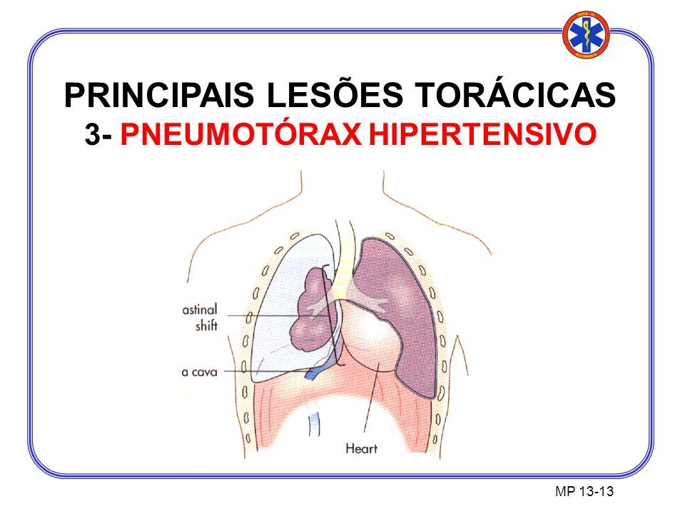 PRINCIPAIS LESÕES TORÁCICAS 3- PNEUMOTÓRAX HIPERTENSIVO MP 13-13