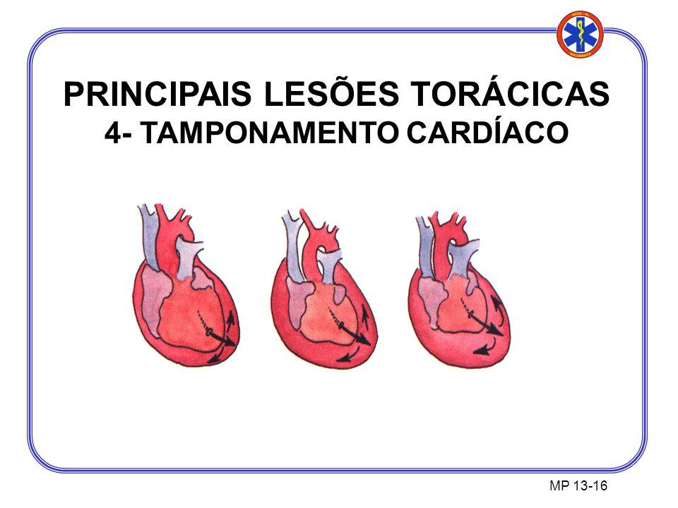 PRINCIPAIS LESÕES TORÁCICAS 4- TAMPONAMENTO CARDÍACO MP 13-16