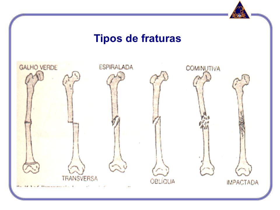CONCEITOS BÁSICOS Fraturas: Perda total ou parcial da continuidade óssea; podem ser: fechadaaberta