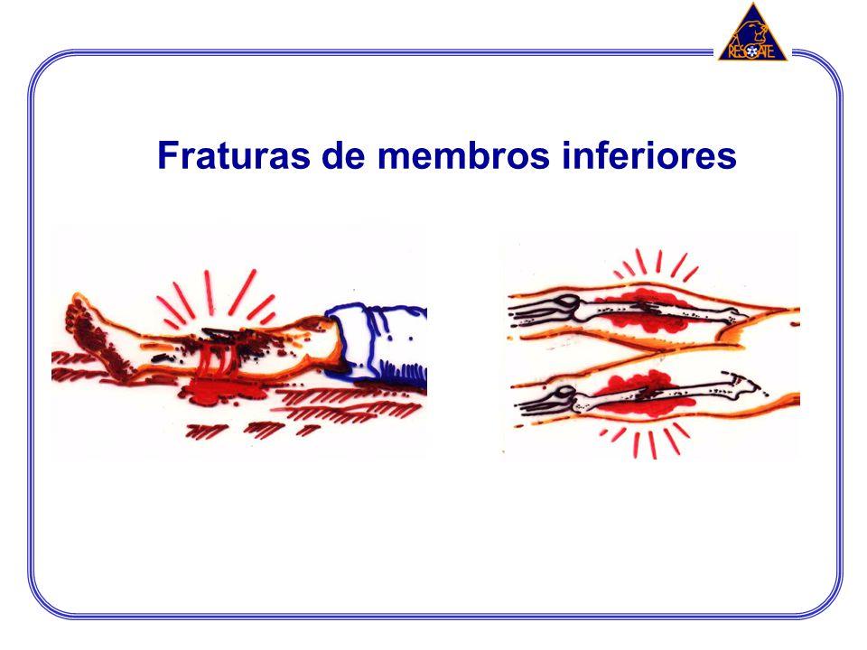 TRATAMENTO A imobilização é o tratamento mais indicado no APH. Imobilizar abrangendo uma articulação acima e outra abaixo do local de fratura; TIPOS D