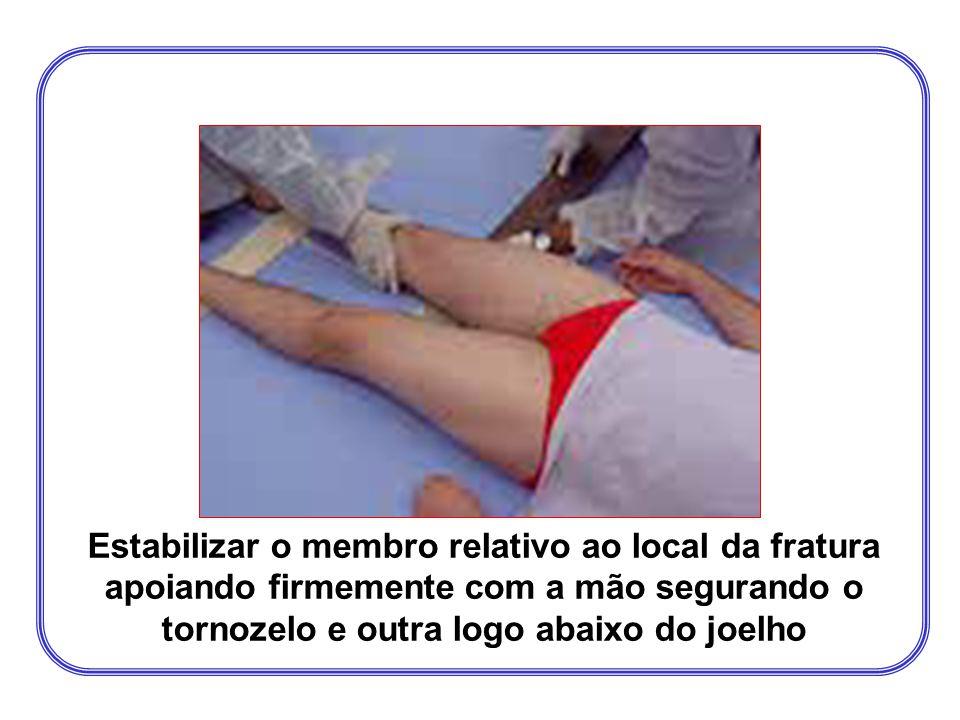 Fratura de fêmur ou quadril Tratamento Imobilizar abrangendo uma articulação acima e outra abaixo do local de fratura; Materiais adequados: 01 tala rí