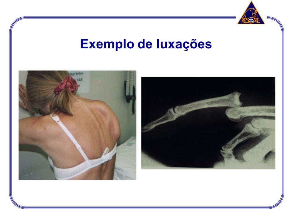 LUXAÇÃO É o desalinhamento das extremidades ósseas de uma articulação fazendo com que as superfícies articulares percam o contato entre si. O desencai