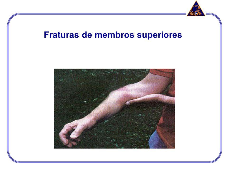 Procedimentos operacionais de imobilização de lesões músculo – esqueléticas Úmero: envolver a articulação do ombro e do cotovelo, se a fratura for proximal, utilizar 2 bandagens triangulares; Se a fratura for no 1/3 médio ou distal, utilizar tala rígida ou moldável na face anterior do braço, protegendo a extremidade da tala; Rádio e ulna: envolver a articulação do cotovelo e do punho e utilizar a tala rígida ou moldável; e Mãos e dedos: Imobilizar a mão com os dedos na posição anatômica, deixando-os apoiados sobre um rolo de atadura ou gaze.