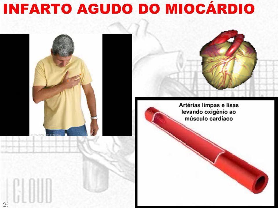 29/03/2008 INFARTO AGUDO DO MIOCÁRDIO