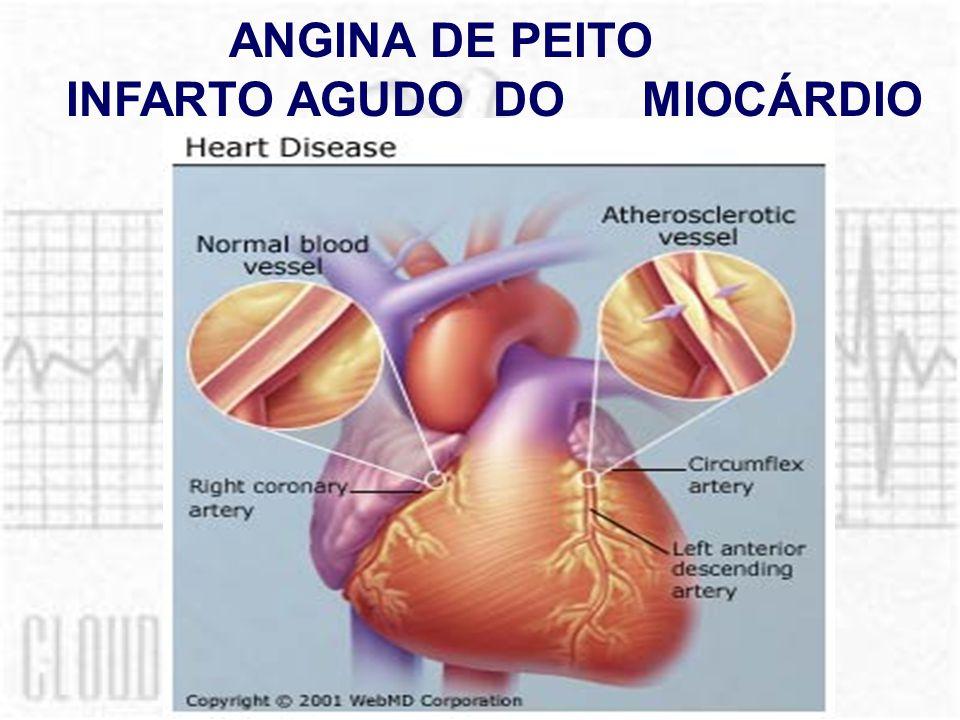 ANGINA DE PEITO INFARTO AGUDO DOMIOCÁRDIO