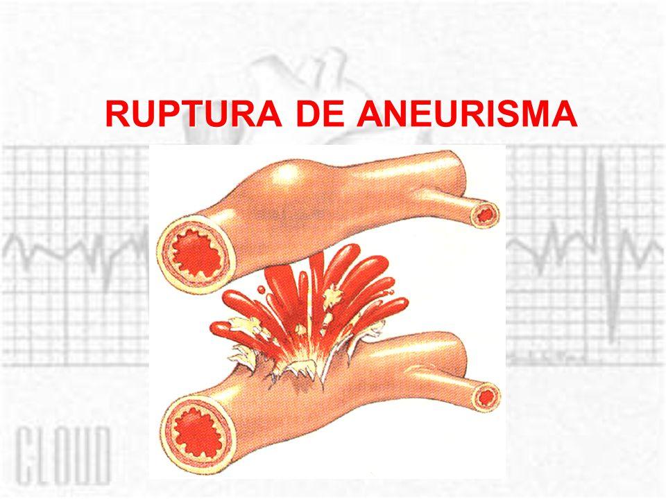 RUPTURA DE ANEURISMA