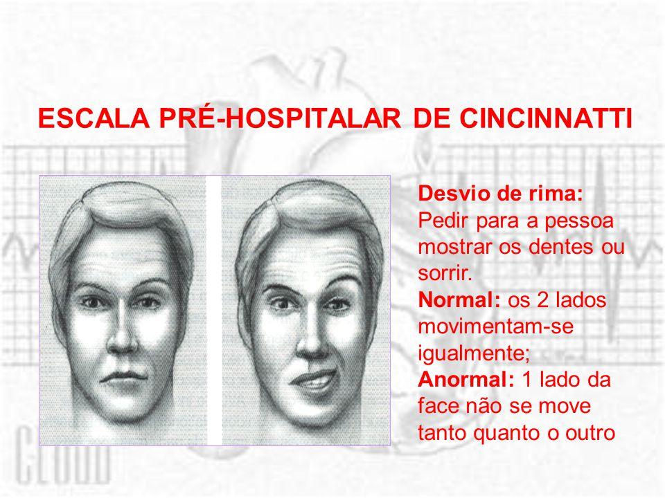 ESCALA PRÉ-HOSPITALAR DE CINCINNATTI Desvio de rima: Pedir para a pessoa mostrar os dentes ou sorrir. Normal: os 2 lados movimentam-se igualmente; Ano