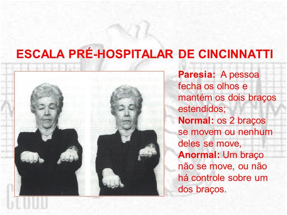 ESCALA PRÉ-HOSPITALAR DE CINCINNATTI Paresia: A pessoa fecha os olhos e mantém os dois braços estendidos; Normal: os 2 braços se movem ou nenhum deles