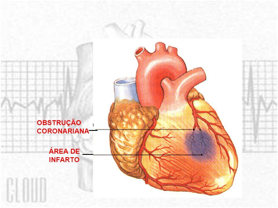 ANGINA DE PEITO Situações que exigem maior fluxo de sangue (estresse, esforço físico) Doença coronariana Não supre a o aumento da demanda Dor - angina pectoris