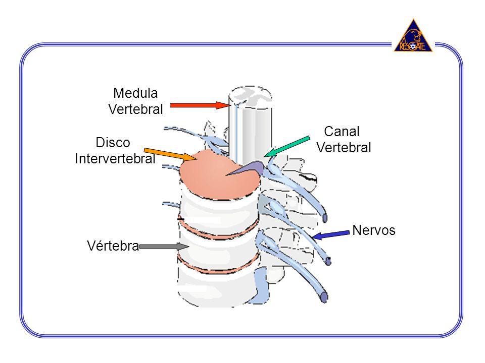 Medula Vertebral Vértebra Disco Intervertebral Nervos Canal Vertebral