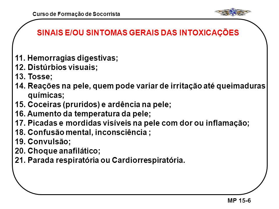 Curso de Formação de Socorrista MP 15-6 SINAIS E/OU SINTOMAS GERAIS DAS INTOXICAÇÕES 11. Hemorragias digestivas; 12. Distúrbios visuais; 13. Tosse; 14