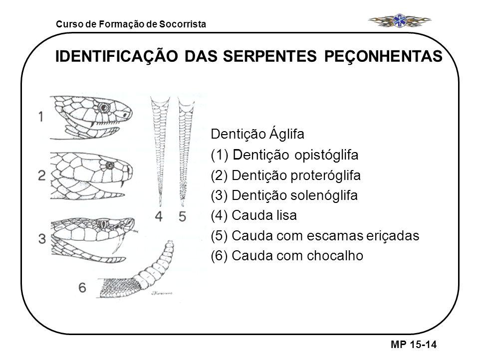 IDENTIFICAÇÃO DAS SERPENTES PEÇONHENTAS Dentição Áglifa (1) Dentição opistóglifa (2) Dentição proteróglifa (3) Dentição solenóglifa (4) Cauda lisa (5)