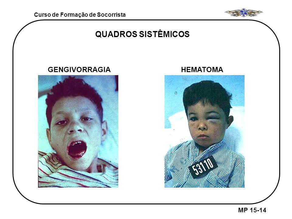 Curso de Formação de Socorrista MP 15-14 GENGIVORRAGIAHEMATOMA QUADROS SISTÊMICOS