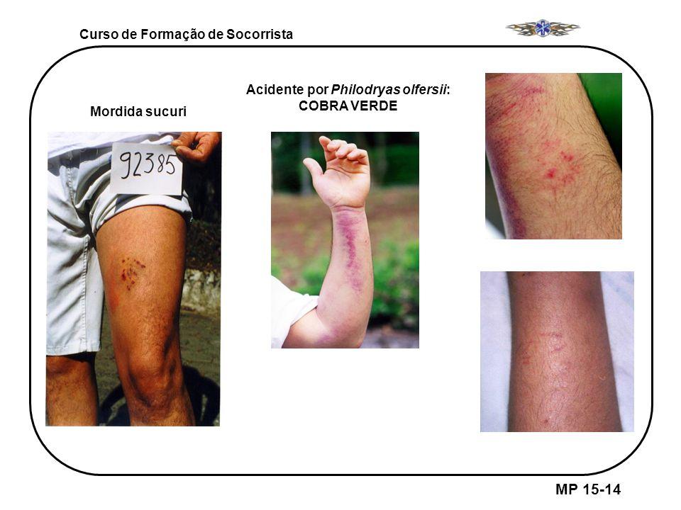 MP 15-14 Curso de Formação de Socorrista Mordida sucuri Acidente por Philodryas olfersii: COBRA VERDE