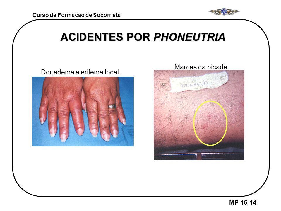 ACIDENTES POR PHONEUTRIA Sinais da picada Dor,edema e eritema local. Marcas da picada. MP 15-14 Curso de Formação de Socorrista