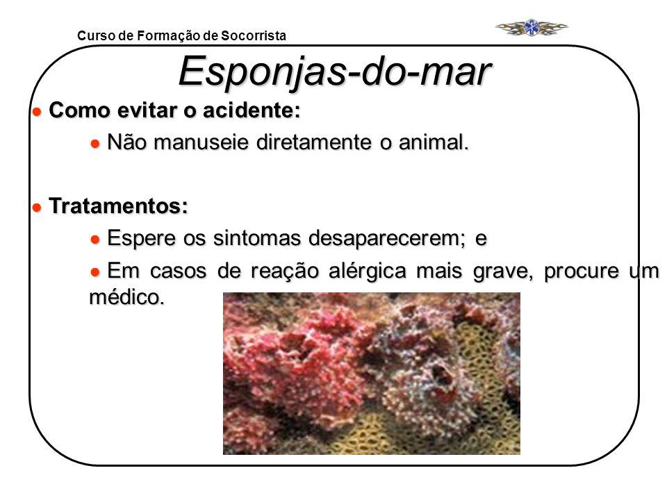 Curso de Formação de Socorrista Esponjas-do-mar Como evitar o acidente: Como evitar o acidente: Não manuseie diretamente o animal. Não manuseie direta