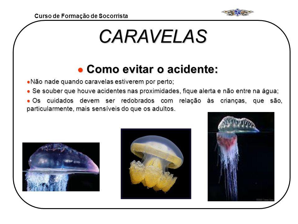 Curso de Formação de Socorrista CARAVELAS Como evitar o acidente: Como evitar o acidente: Não nade quando caravelas estiverem por perto; Não nade quan