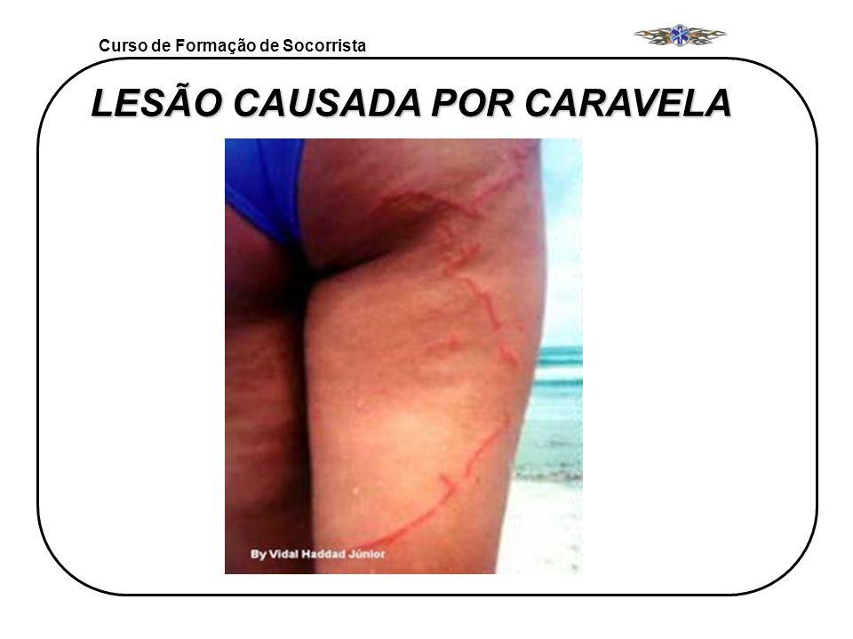 Curso de Formação de Socorrista LESÃO CAUSADA POR CARAVELA