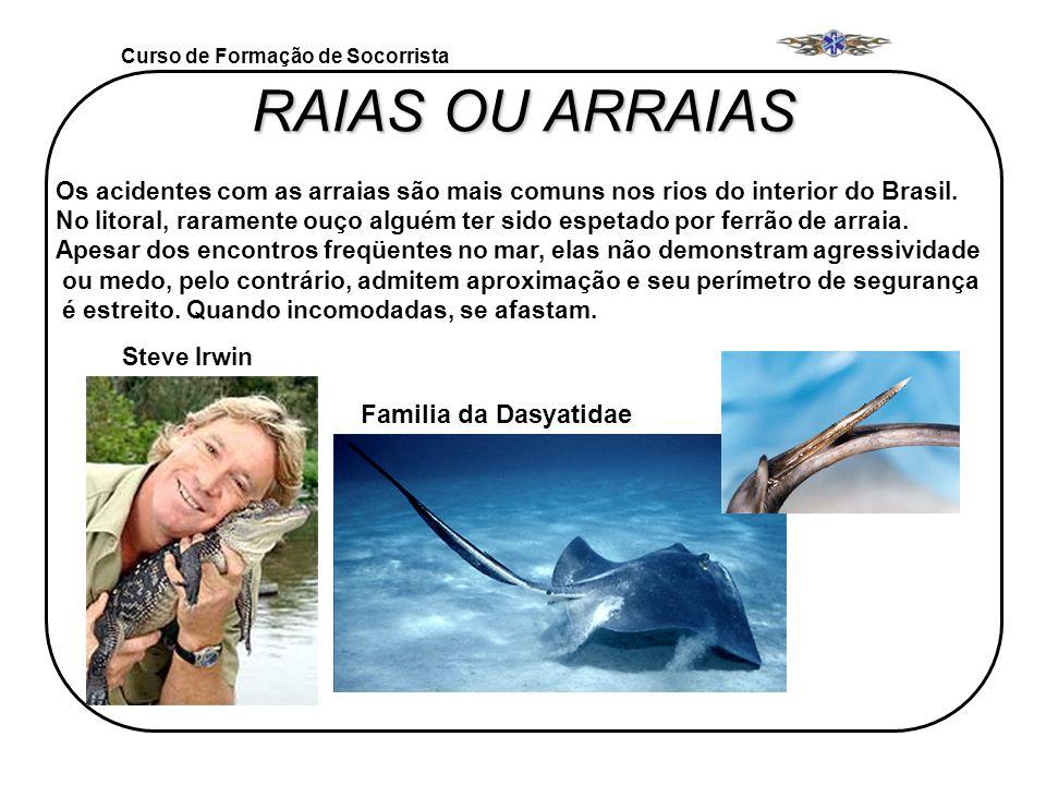 Curso de Formação de Socorrista RAIAS OU ARRAIAS Os acidentes com as arraias são mais comuns nos rios do interior do Brasil. No litoral, raramente ouç