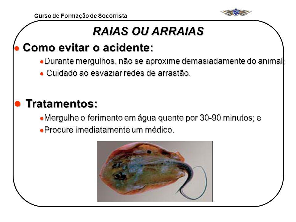Curso de Formação de Socorrista RAIAS OU ARRAIAS Como evitar o acidente: Como evitar o acidente: Durante mergulhos, não se aproxime demasiadamente do