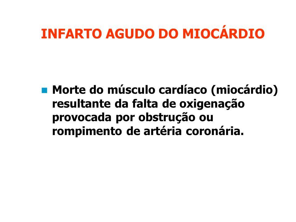 INFARTO AGUDO DO MIOCÁRDIO Morte do músculo cardíaco (miocárdio) resultante da falta de oxigenação provocada por obstrução ou rompimento de artéria coronária.