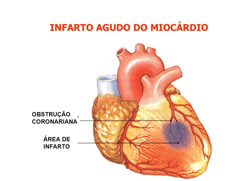 INFARTO AGUDO DO MIOCÁRDIO ÁREA DE INFARTO OBSTRUÇÃO CORONARIANA