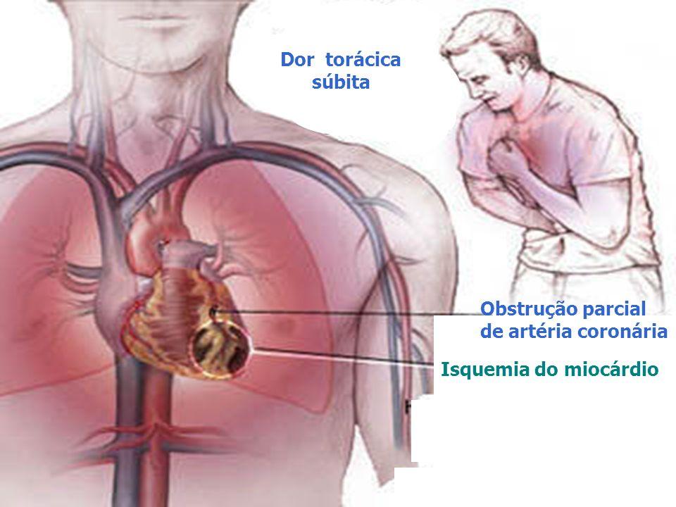 Obstrução parcial de artéria coronária Isquemia do miocárdio Dor torácica súbita
