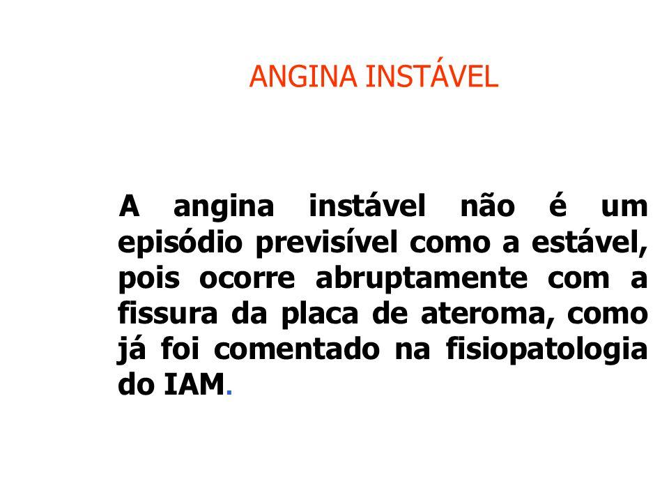 ANGINA INSTÁVEL A angina instável não é um episódio previsível como a estável, pois ocorre abruptamente com a fissura da placa de ateroma, como já foi comentado na fisiopatologia do IAM.