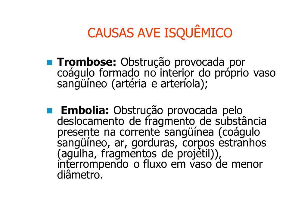 CAUSAS AVE ISQUÊMICO Trombose: Obstrução provocada por coágulo formado no interior do próprio vaso sangüíneo (artéria e arteríola); Embolia: Obstrução provocada pelo deslocamento de fragmento de substância presente na corrente sangüínea (coágulo sangüíneo, ar, gorduras, corpos estranhos (agulha, fragmentos de projétil)), interrompendo o fluxo em vaso de menor diâmetro.