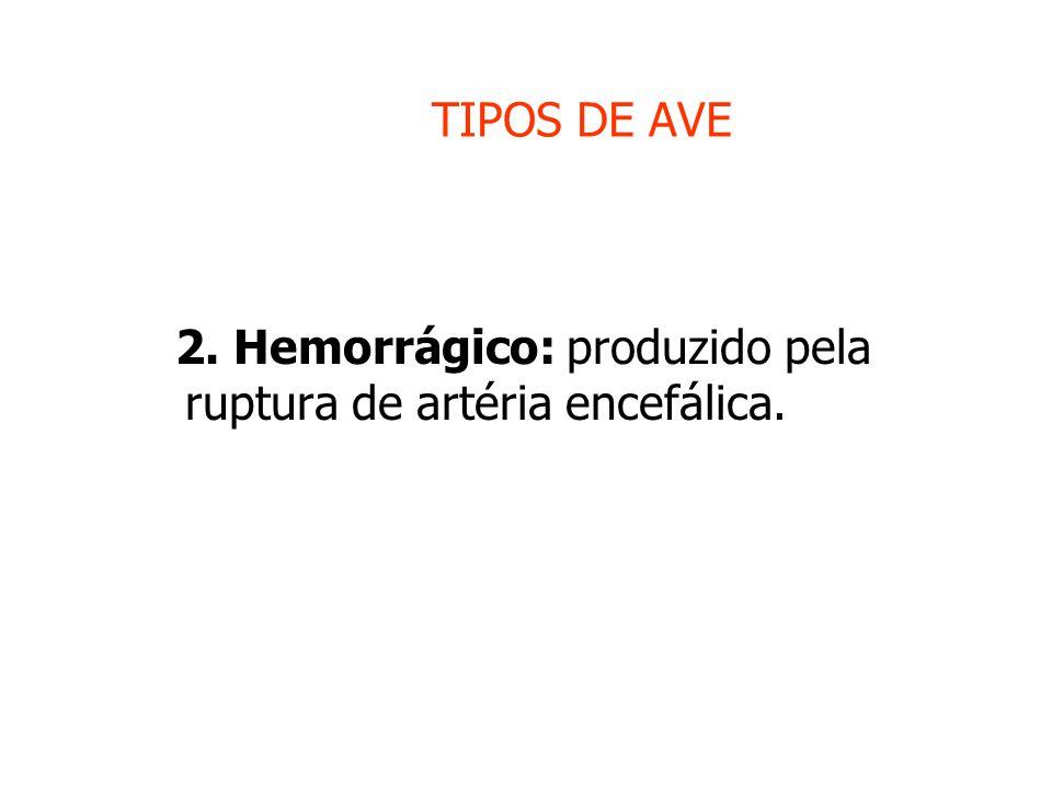 TIPOS DE AVE 2. Hemorrágico: produzido pela ruptura de artéria encefálica.