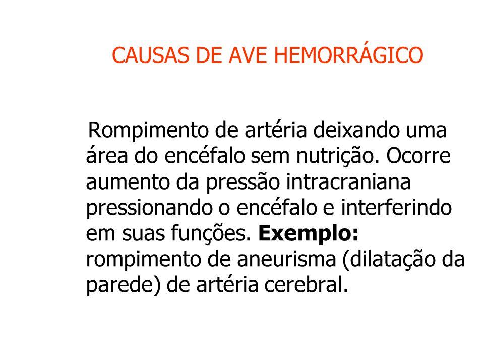 CAUSAS DE AVE HEMORRÁGICO Rompimento de artéria deixando uma área do encéfalo sem nutrição.