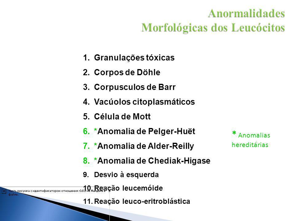1.Granulações tóxicas 2.Corpos de Döhle 3.Corpusculos de Barr 4.Vacúolos citoplasmáticos 5.Célula de Mott 6.*Anomalia de Pelger-Huët 7.*Anomalia de Al
