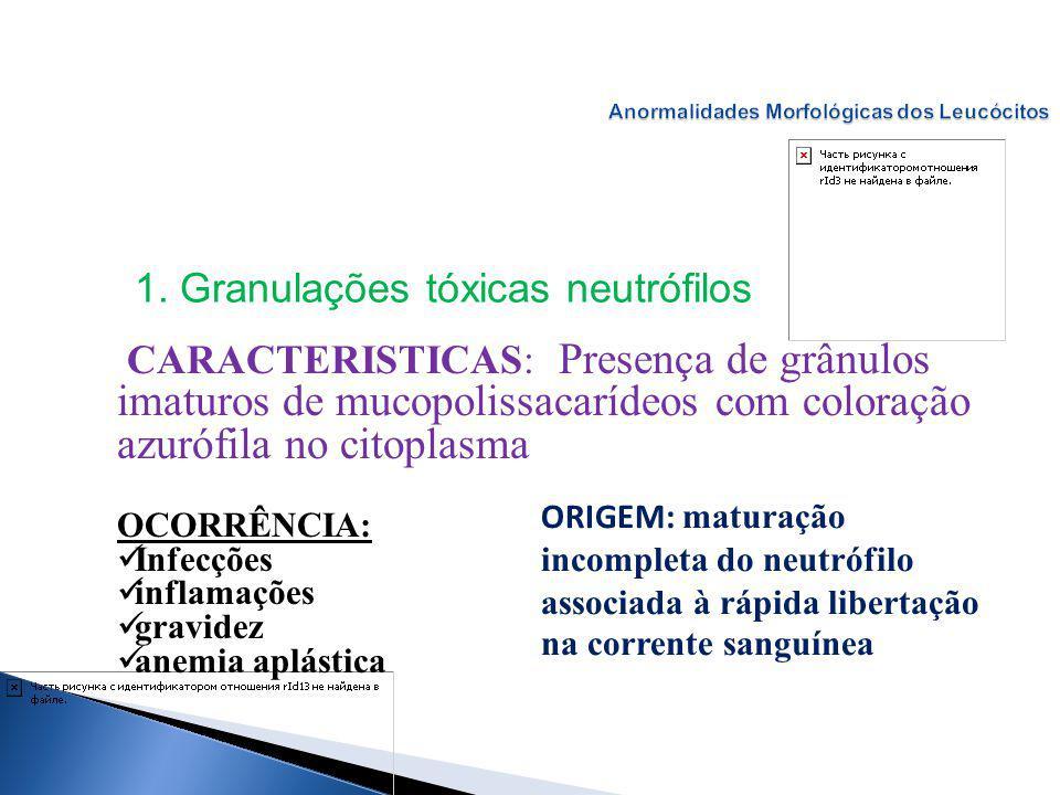 CARACTERISTICAS: Presença de grânulos imaturos de mucopolissacarídeos com coloração azurófila no citoplasma OCORRÊNCIA: Infecções inflamações gravidez