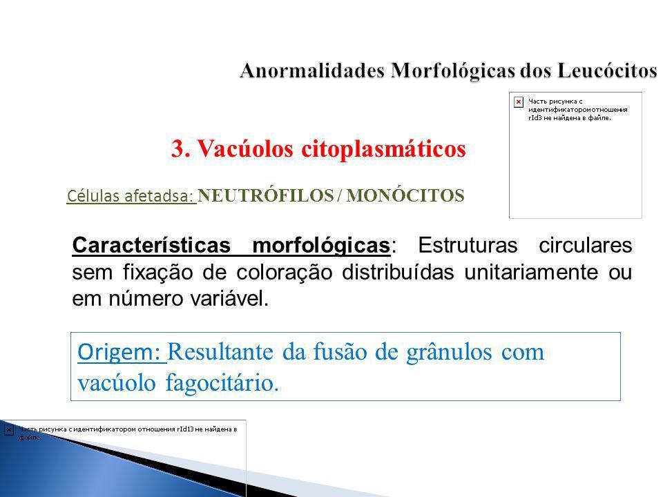 3. Vacúolos citoplasmáticos Células afetadsa : NEUTRÓFILOS / MONÓCITOS Características morfológicas: Estruturas circulares sem fixação de coloração di
