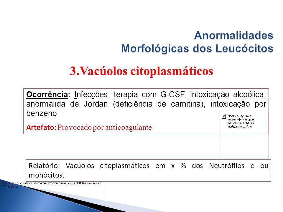 3.Vacúolos citoplasmáticos Relatório: Vacúolos citoplasmáticos em x % dos Neutrófilos e ou monócitos. Ocorrência: Infecções, terapia com G-CSF, intoxi