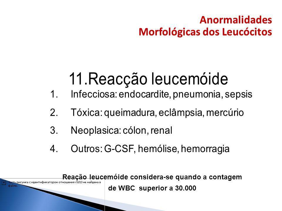 Anormalidades Morfológicas dos Leucócitos Reação leucemóide considera-se quando a contagem de WBC superior a 30.000