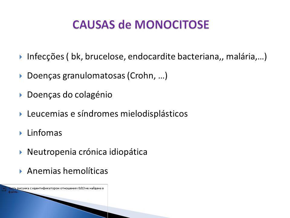 Infecções ( bk, brucelose, endocardite bacteriana,, malária,…) Doenças granulomatosas (Crohn, …) Doenças do colagénio Leucemias e síndromes mielodispl