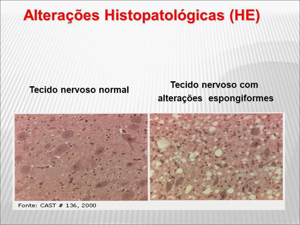 Tecido nervoso normal Tecido nervoso com alterações espongiformes Alterações Histopatológicas (HE)