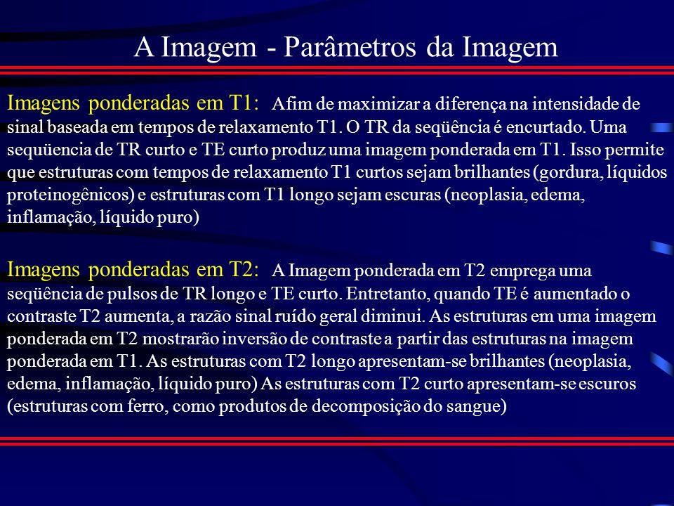 A Imagem - Parâmetros da Imagem Tecido Densidade Protônica T1 (ms)T2 (ms) LCE10.82000250 Subs.