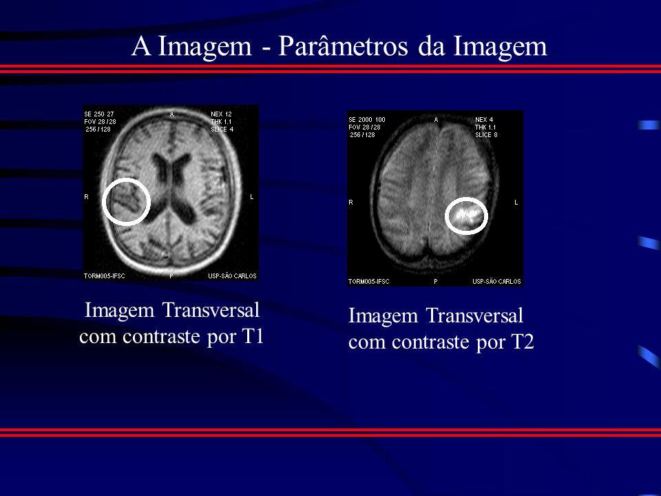 A Imagem - Parâmetros da Imagem Imagens ponderadas em T1: Afim de maximizar a diferença na intensidade de sinal baseada em tempos de relaxamento T1.
