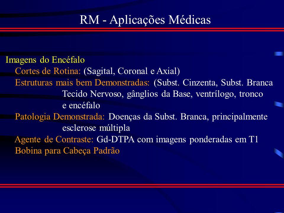 RM - Aplicações Médicas A seguir, serão apresentados os exames mais comuns feitos por IRM, serão também descritas as orientaçoes para o exame.