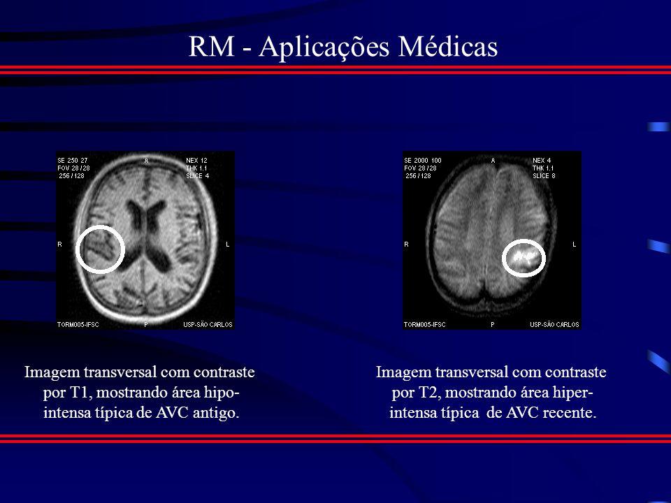 RM - Aplicações Médicas Imagens do Encéfalo Cortes de Rotina: (Sagital, Coronal e Axial) Estruturas mais bem Demonstradas: (Subst.