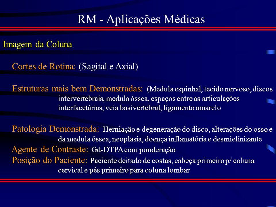 RM - Aplicações Médicas Imagem transversal com contraste por T1, mostrando área hipo- intensa típica de AVC antigo.