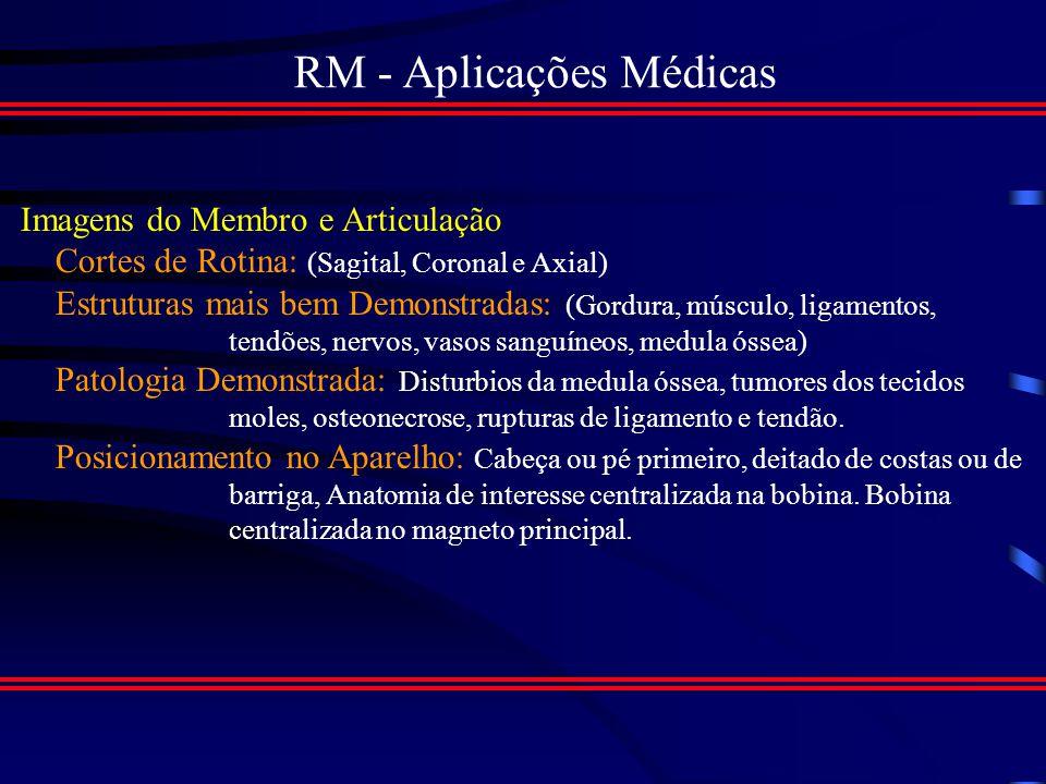 RM - Aplicações Médicas Imagens Sagitais da coluna lombar com contraste por densida de, mostrando protusão dos discos invertebrais l3, l4 e l4 -l5