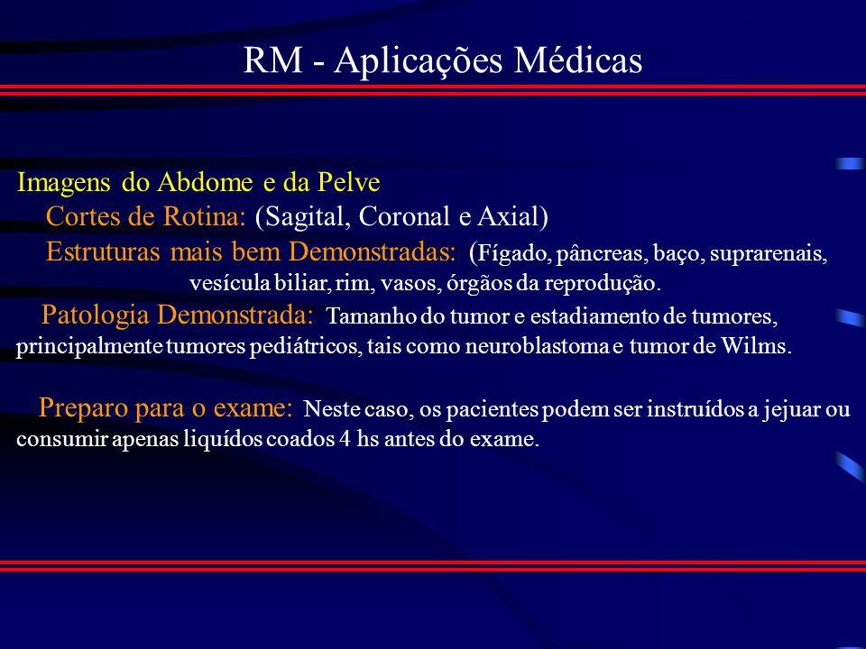 RM - Aplicações Médicas Imagem Coronal com contraste por T1, Mostrando Ruptura do menisco medial Imagem Sagital com contraste por T1, Mostrando Ruptura do menisco medial