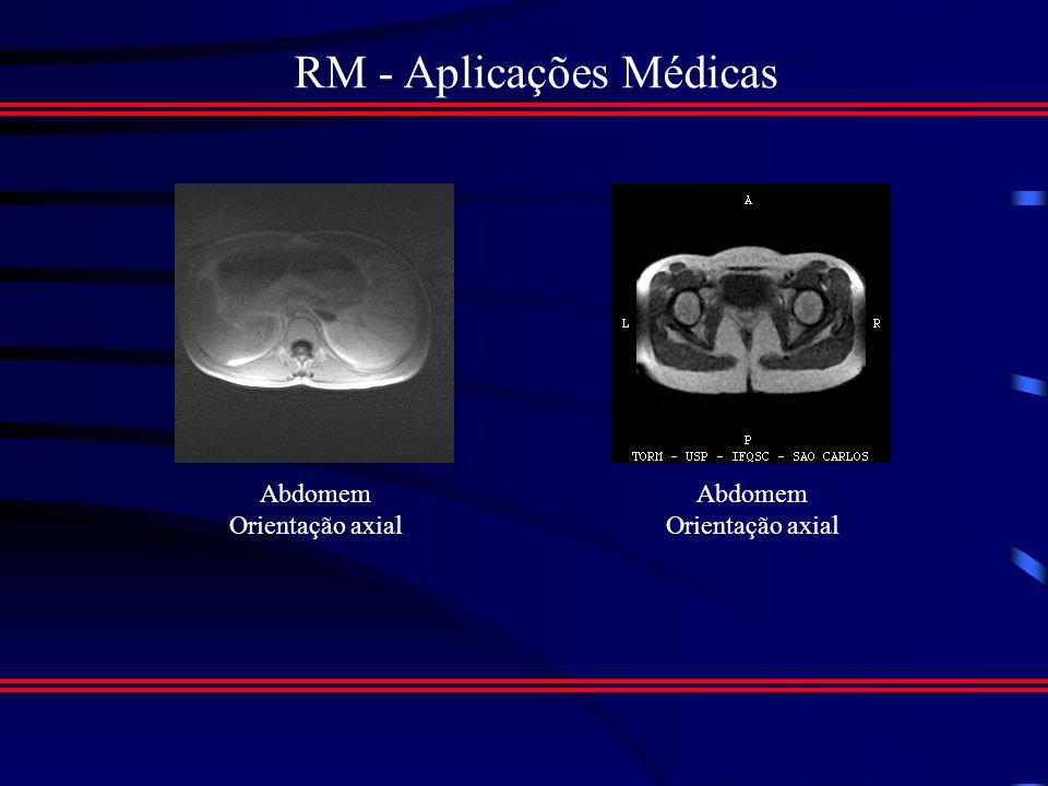 RM - Aplicações Médicas Imagens do Abdome e da Pelve Cortes de Rotina: (Sagital, Coronal e Axial) Estruturas mais bem Demonstradas: ( Fígado, pâncreas, baço, suprarenais, vesícula biliar, rim, vasos, órgãos da reprodução.