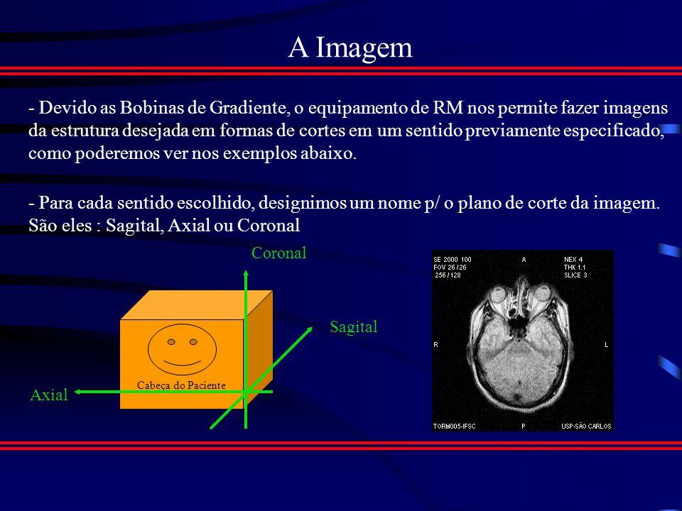 IRM na Medicina