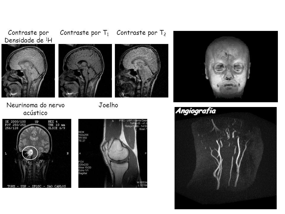 Contraste por Densidade de 1 H Contraste por T 2 Contraste por T 1 Neurinoma do nervo acústico Joelho Angiografia 3D