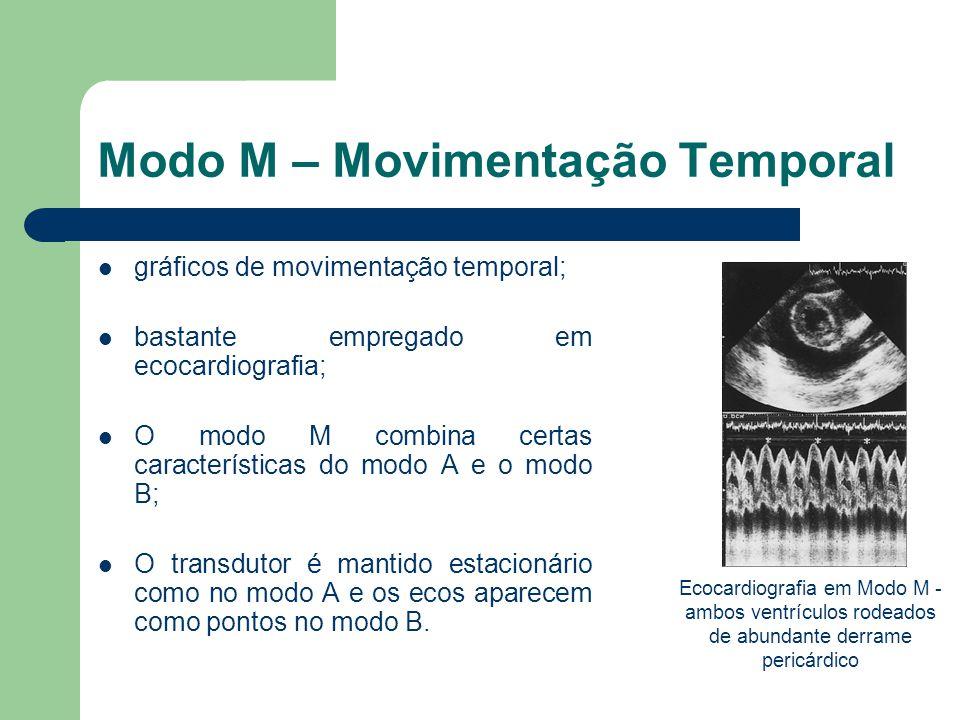 Modo M – Movimentação Temporal gráficos de movimentação temporal; bastante empregado em ecocardiografia; O modo M combina certas características do mo